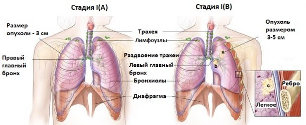 Рак легких 1 стадии