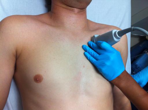 Ультразвуковое исследование легких