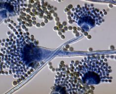 Грибок Aspergillus