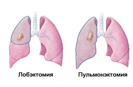Лобэктомия и пульмонэктомия