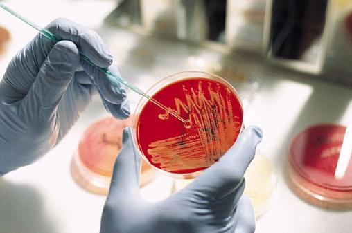 Микробиологическая диагностика туберкулеза