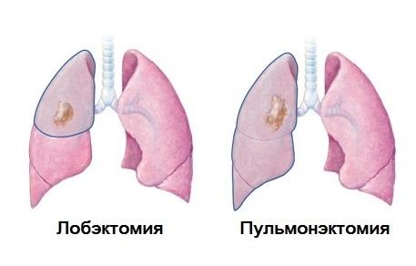 Лобэктомия и пульмонэктомя