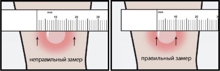 Оценка реакции Манту