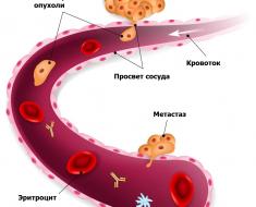 Гематогенное метастазирование