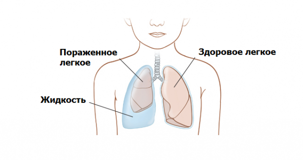 Жидкость в легких