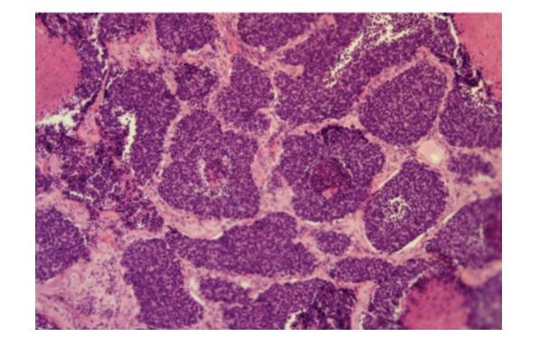 Мелкоклеточный рак легкого под микроскопом