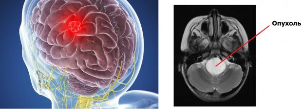 Раковая опухоль в головном мозге