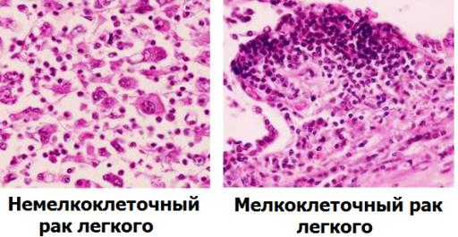 Немелкоклеточный и мелкоклеточный рак легкого
