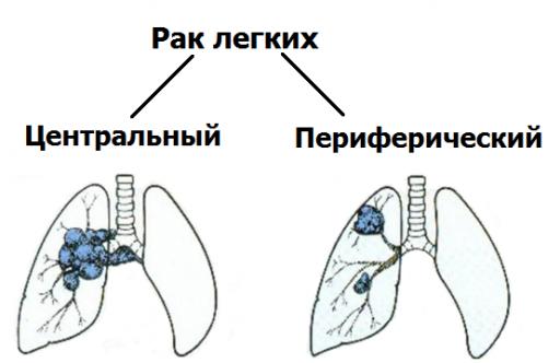 Центральный и периферический рак легких