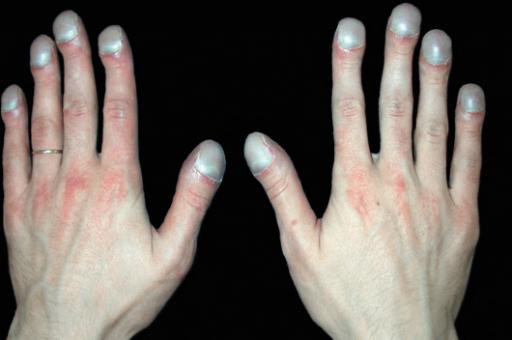 Утолщение ногтевых фаланг