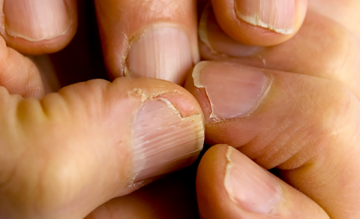 Слабые ногти