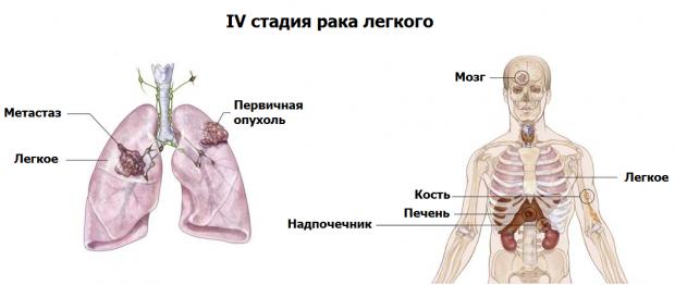 Лечение чесотки у свиней фото