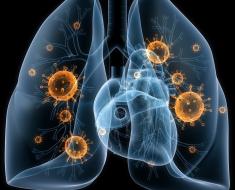 Двухсторонее воспаление легких