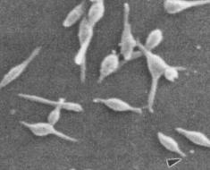 Микоплазмы пневмонии