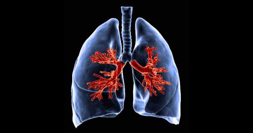 Инфаркт пневмония