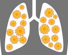 Двухстороняя пневмония