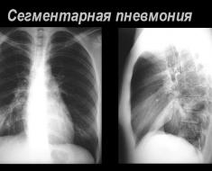 Сегментарная пневмония
