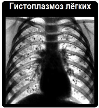Гистоплазмоз лёгких