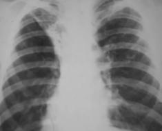 Цирротический туберкулёз